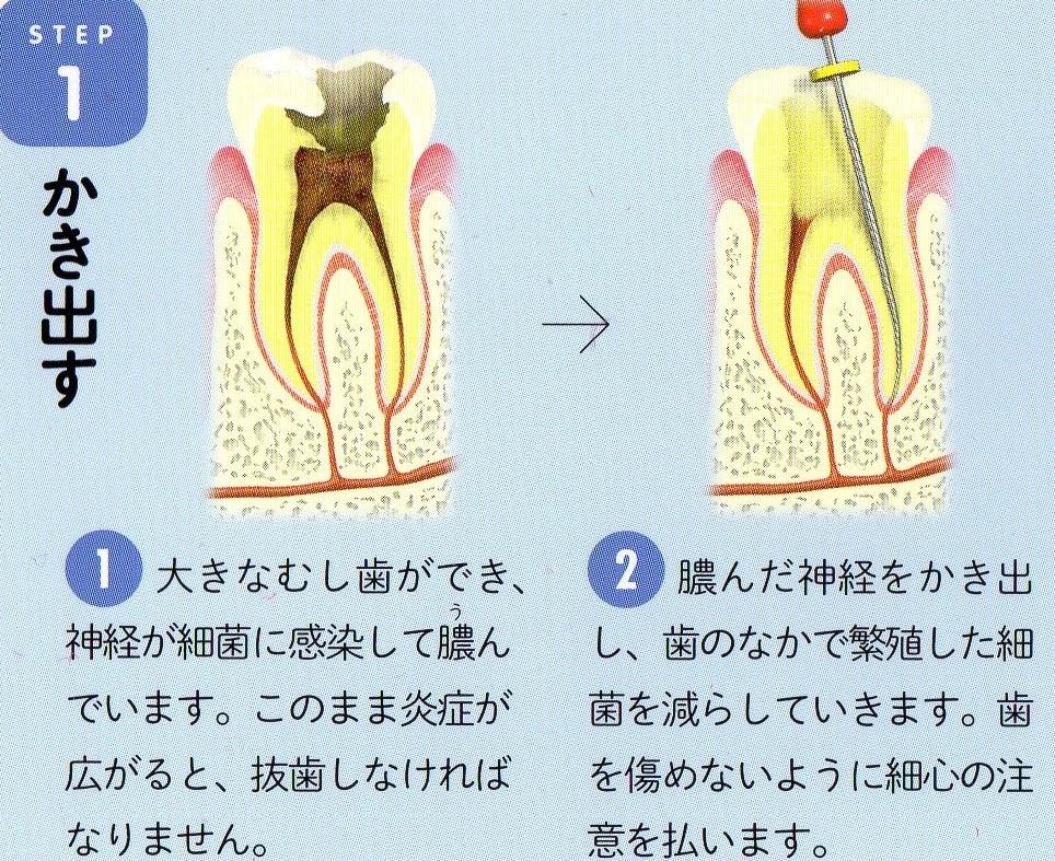 歯 の 神経 を 抜く